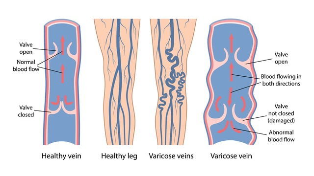 Does Height Cause Varicose Veins? This diagram shows the difference between a healthy vein and a varicose vein